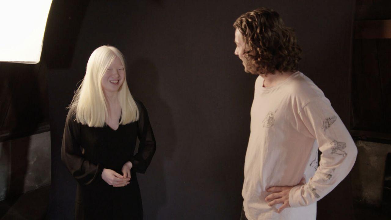 Het Klokhuis - Albinisme